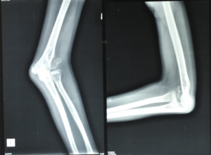 neglected fracture
